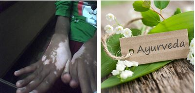 How to stop vitiligo spreading