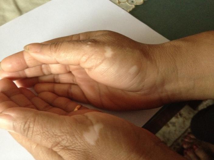 Vitiligo treatmment in ayurveda