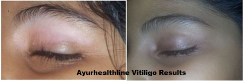 Vitiligo treatment Australia
