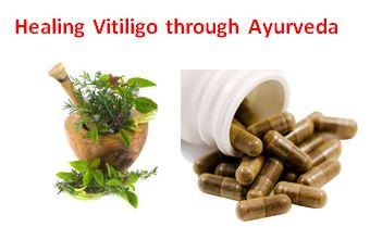 Ayurvedic vitiligo speciality cure clinic Ayurhealthline