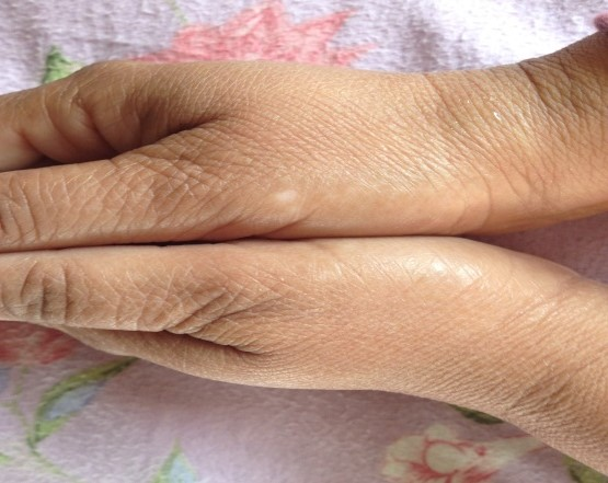 Ayurvedic Treatment for Vitiligo